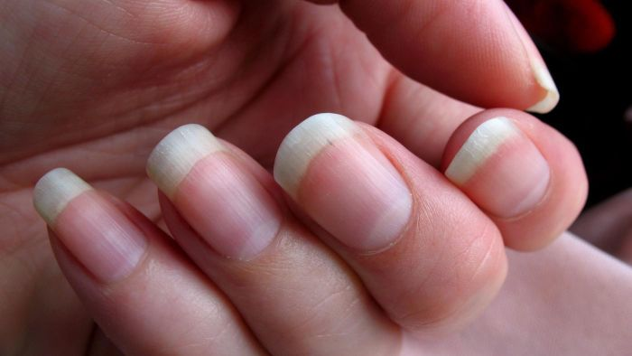 What Is the Best Way to Remove a Deep Splinter Under the Fingernail?