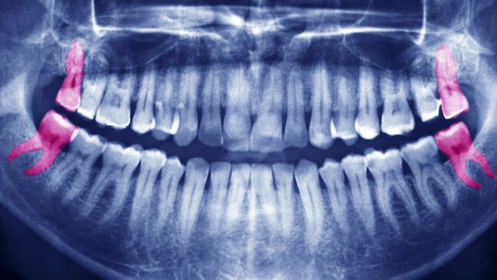 When Do Wisdom Teeth Erupt in Adults?