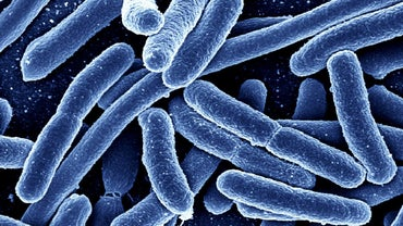 How Do Eubacteria and Archaebacteria Differ?