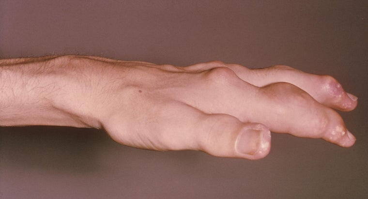 What Is Pseudo Gout?