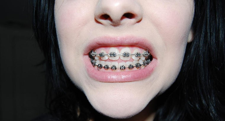 What Alternatives Are There to Orthodontic Braces?
