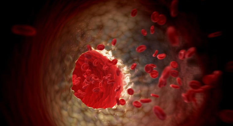What Is Aortic Atherosclerosis?