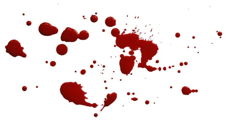 What Is Blood Spatter Analysis?