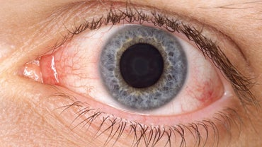 How Does Boric Acid Help With Pink Eye?