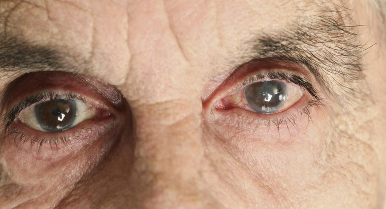 Can You Correct Secondary Cataracts With Glasses?