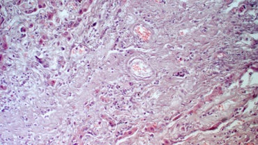 Can a Damaged Liver Repair Itself?