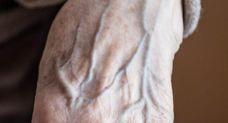Can Deep Vein Thrombosis Be Cured?