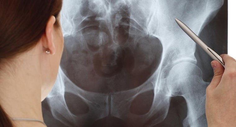 Can Hip Surgery Be Unsuccessful?