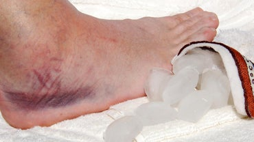 Can Hypothyroidism Cause Swollen Ankles?