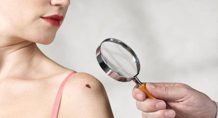 Can Melanoma Be Cured If It Is Detected Early?
