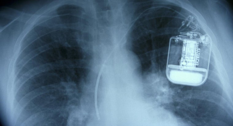 Where Can You Find Pacemaker Surgery Pictures?