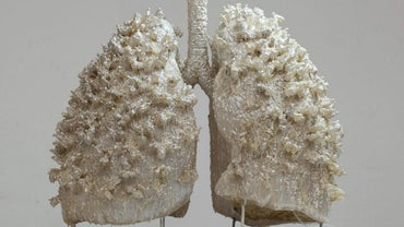 Can a Person Live With One Lung?