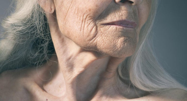 Where Can You Find Photos of Neck Lift Surgery Patients?