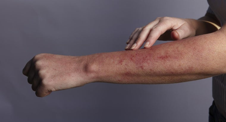 Where Can You Find Photos of Rashes?