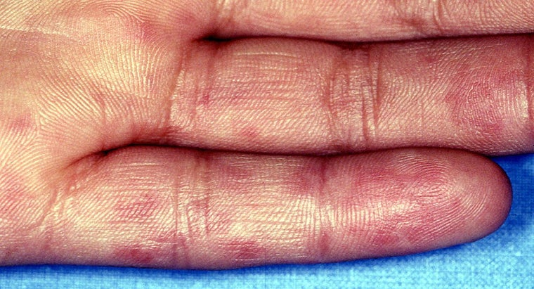 Where Can You Find Pictures of Lupus Skin Rashes?
