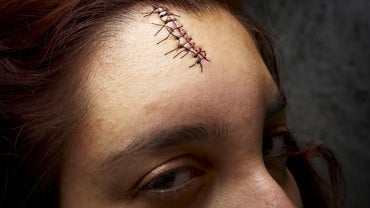 Can You Remove Your Own Stitches?