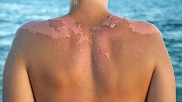 How Can I Stop My Sunburn From Itching?