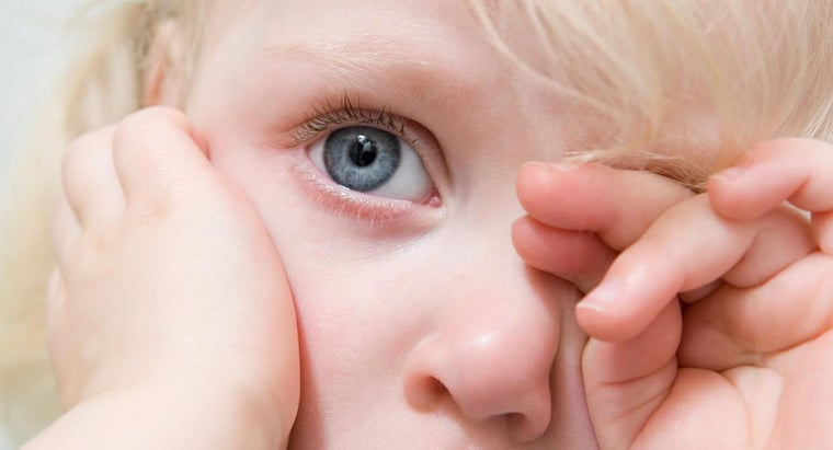 Are There Any Cases of Excessive Watery Eyes Affecting Someone's Vision?