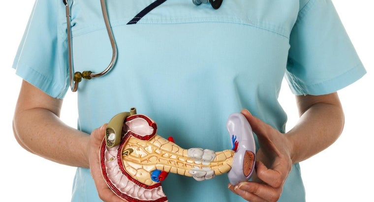What Causes a Dilated Pancreatic Duct?