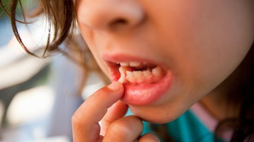 What Causes Loose Teeth in Adults?