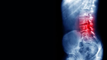 What Are Causes for Lower Back Pain?