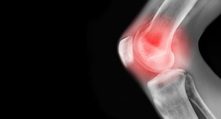 What Are Some Causes of Pain in the Left Knee?
