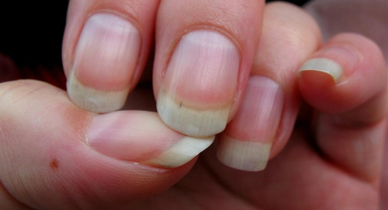 Image result for lines on nails