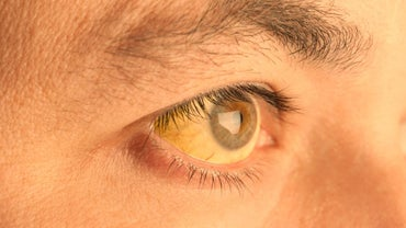 What Causes Skin Under Eyes to Turn Yellow?