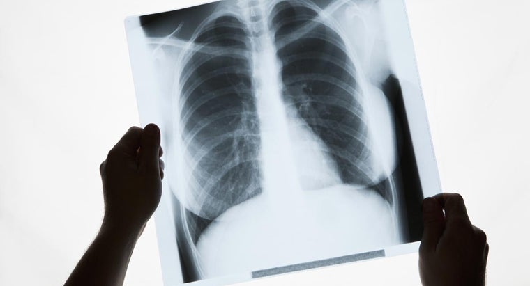 What Causes White Spots in Lungs?