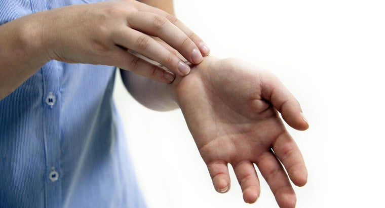 What Is a Cellulitis Infection?