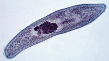 What Are the Characteristics of a Paramecium?