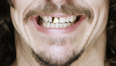 How Do You Clean Gold Teeth?