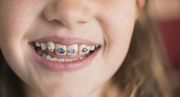 How Do You Clean Rubber Bands on Braces?