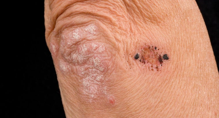 What Could Be the Cause of a Blotchy Rash on Elbows and Knees?