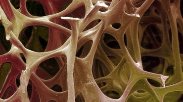 What Is the Definition of Spongy Bone?