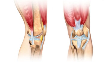 What Is the Difference Between a Tendon and Ligament?