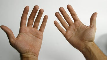 What Diseases Have Sweaty Hands As a Symptom?