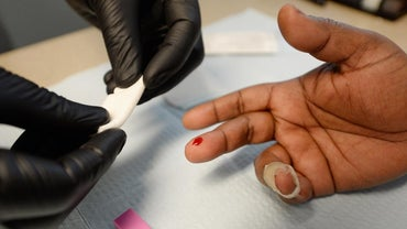 What Are Early Symptoms of HIV?