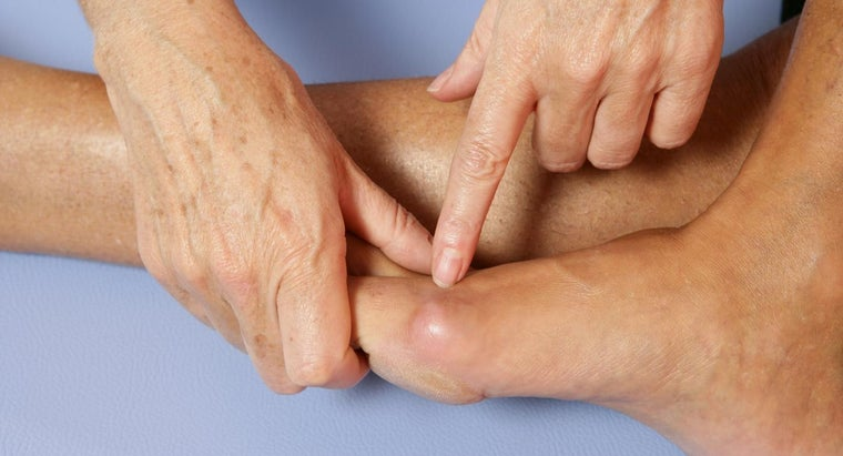 What Are the Most Effective Treatments to Get Rid of Bunions?