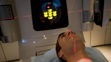 What Are the Effects of Radiation Therapy?