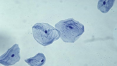 What Is the General Shape of a Cheek Cell?