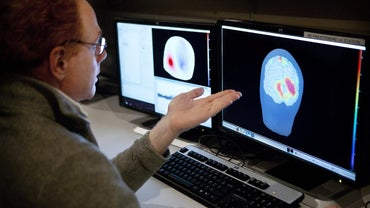 What Happens If the Cerebral Cortex Is Damaged?