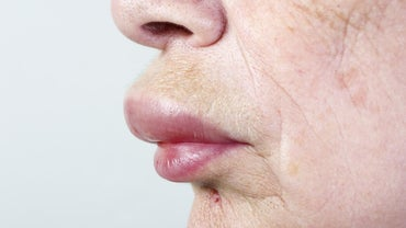 How Do You Heal a Swollen Lip and Face?