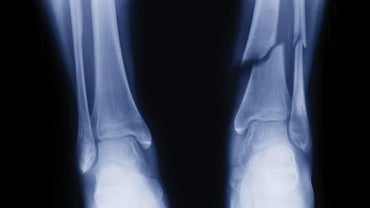 What Is the Healing Time for a Broken Fibula?
