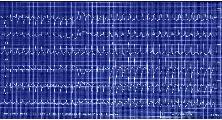 What Is Heart Arrhythmia?