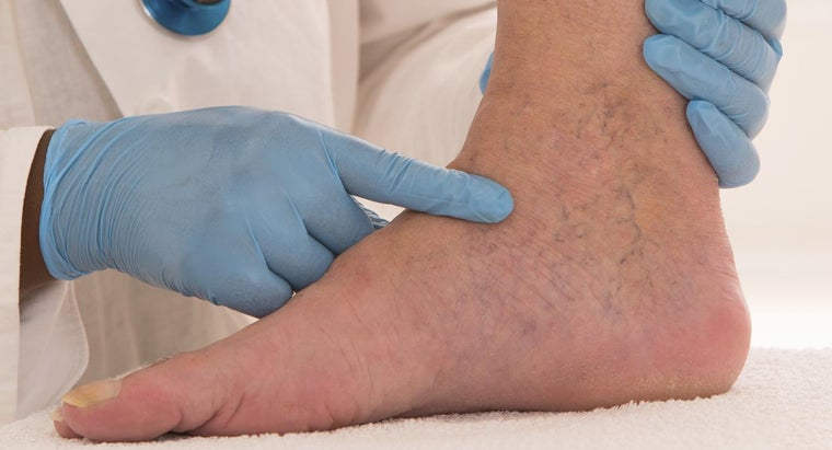 What Are Some Home Remedies for Spider Veins?