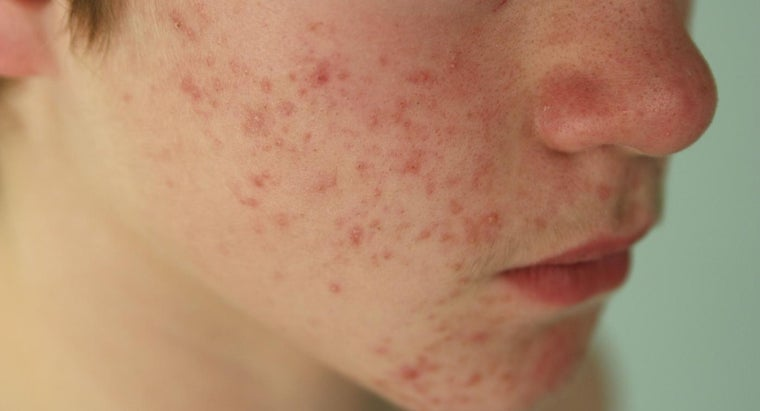 Does Hypothyroidism Cause Acne?