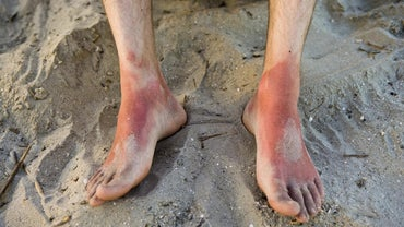 Does Ibuprofen Help Get Rid of Sunburn Pain?