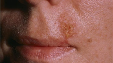 What Does Indian Fire Rash Look Like?