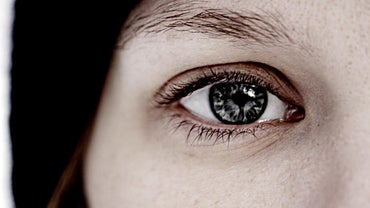 What Is the Iris of the Eye?